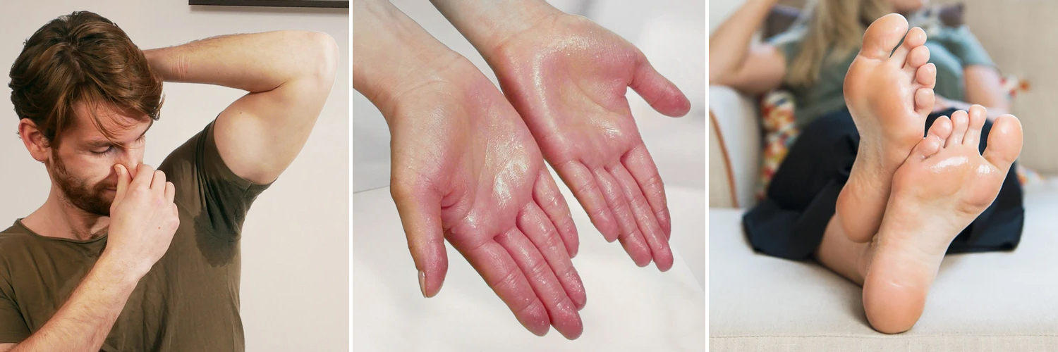hyperhidrosis or excessive sweating of palms, soles or armits