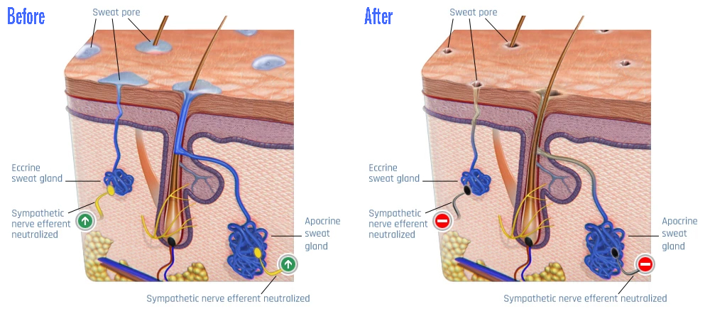 sweat glands before and after treatment